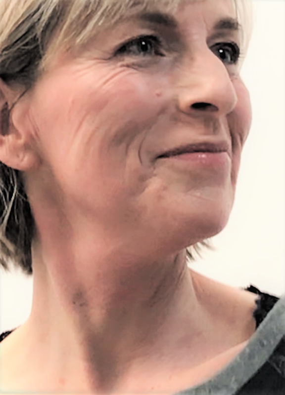 colorescience minerale makeup na een endymed behandeling