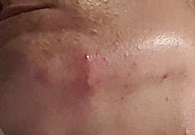 acne marieke