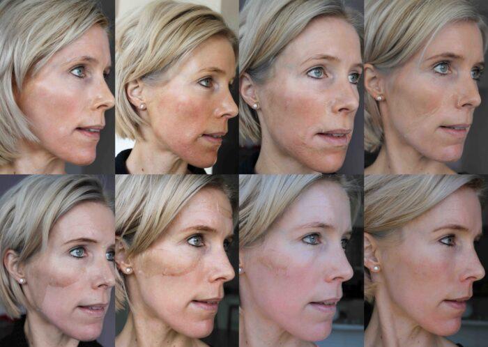 resultaat huid