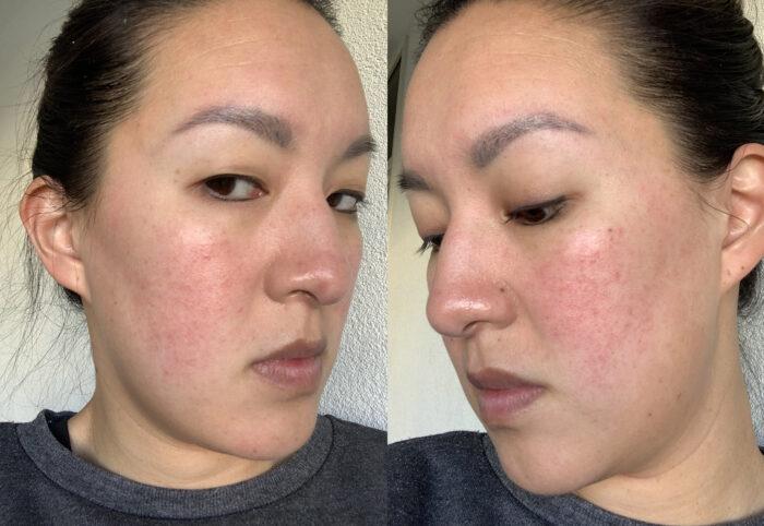 onrustige huid