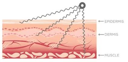 Nuface microstroom