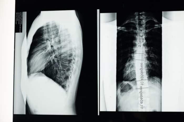 lichaamsscan