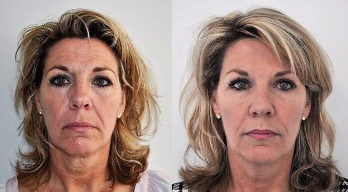 Voor en na liquid facelift