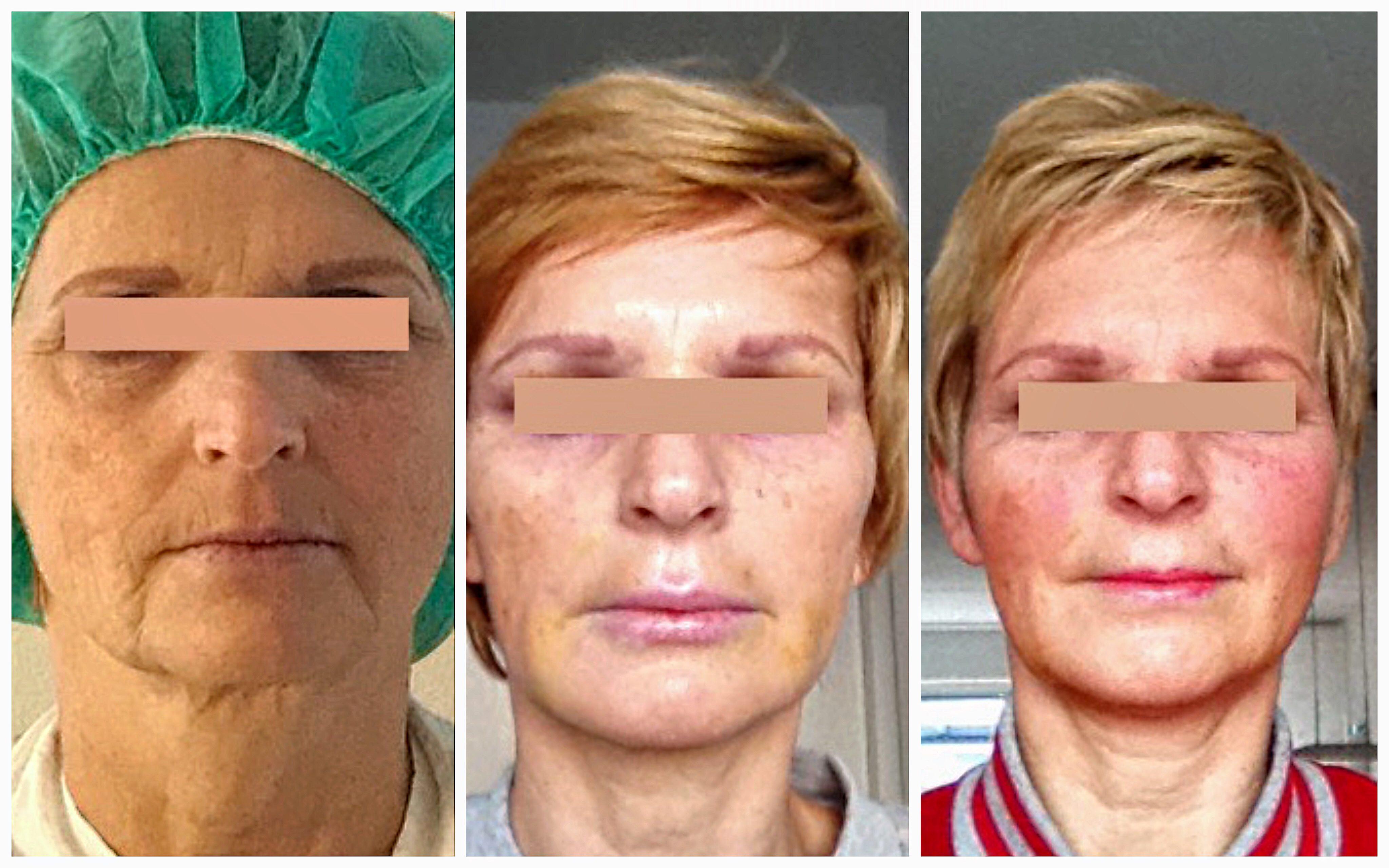 Lipofilling van het gezicht. Links op de foto is voor de behandeling, rechts is na behandeling. De jeugdigheid van het gezicht is helemaal terug incluis een frisse huid.