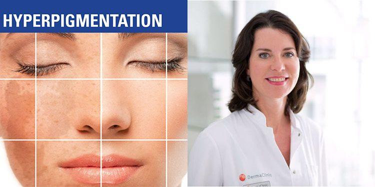 Homepage Catharina Meijer over Hyperpigmentatie