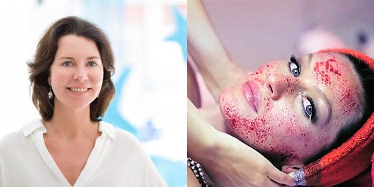 Homepage Catharina Meijer over Rosacea