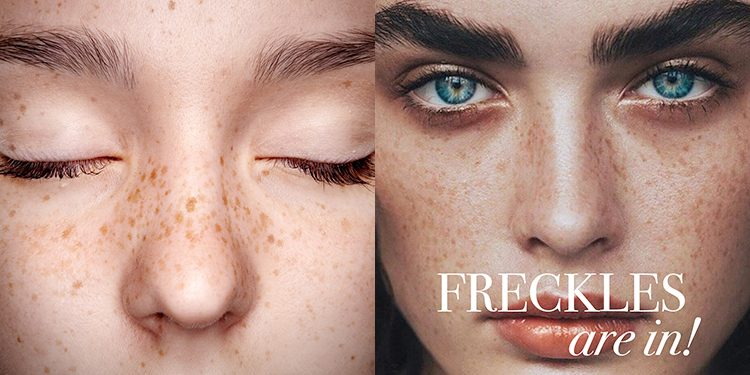 Homepage Freckling