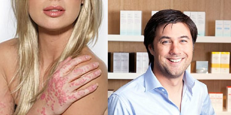 Homepage Joosth Roth over Psoriasis