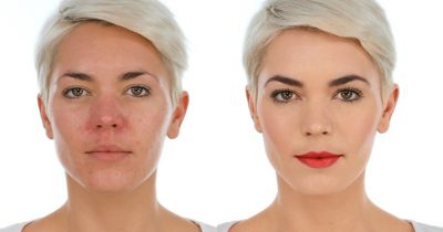 Homepage Lisa Eldridge Rosacea