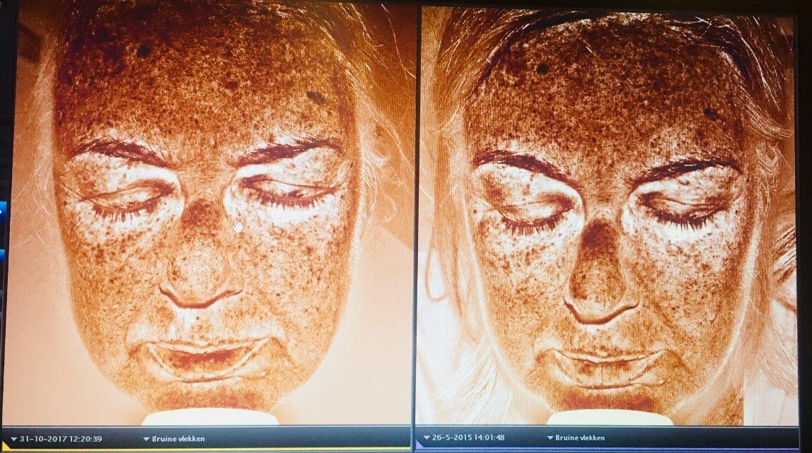 Het pigment in mijn huid. Links op de foto de stand van zaken in  oktober 2017, rechts in mei 2015.