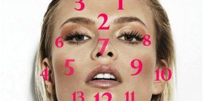 acne en voeding