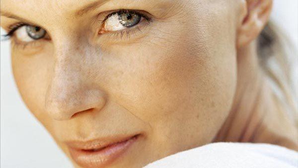 age_spots_Mature_women_IPL_Photorejuvenation_fraxel_CU_PREV_PS