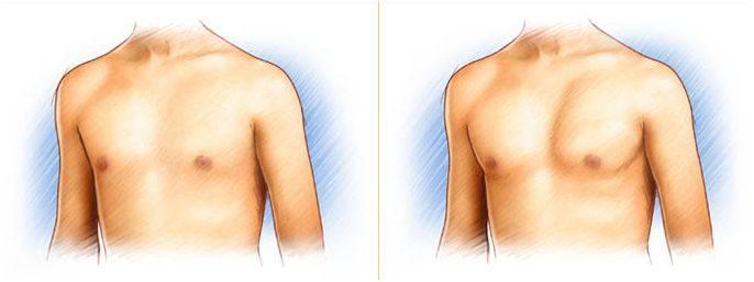 pectorale implantaten