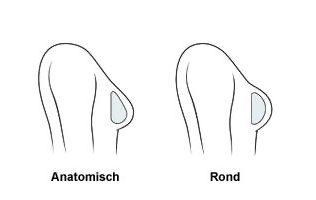 rond en druppelvormig implantaat