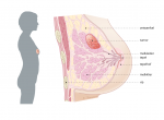 trompert-borstkanker-doorsnede-borst