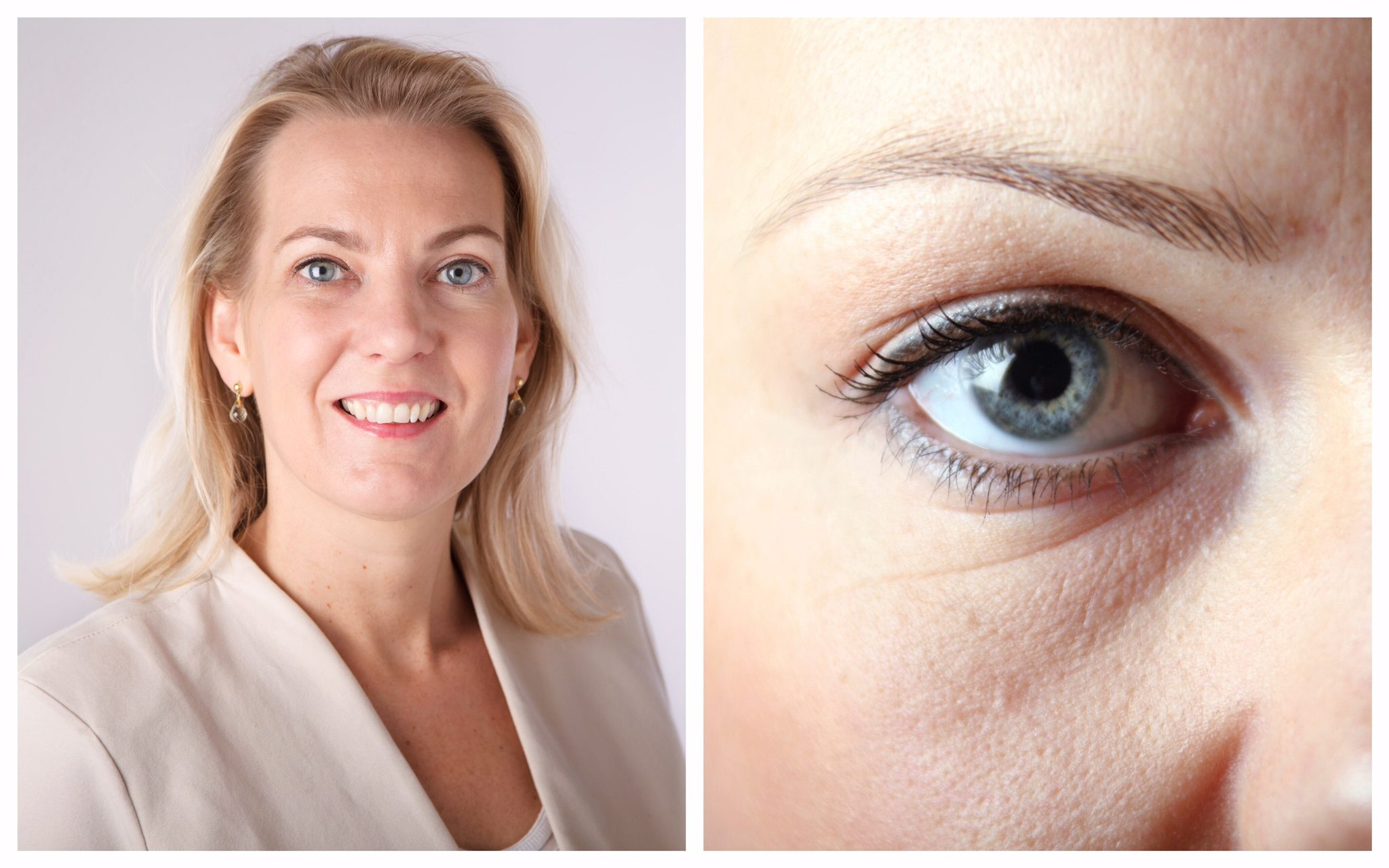 ua paula roossink ooglid correctie beautyjournaal