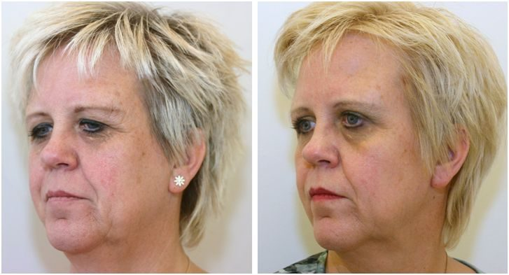 voor en na voorhoofdslift