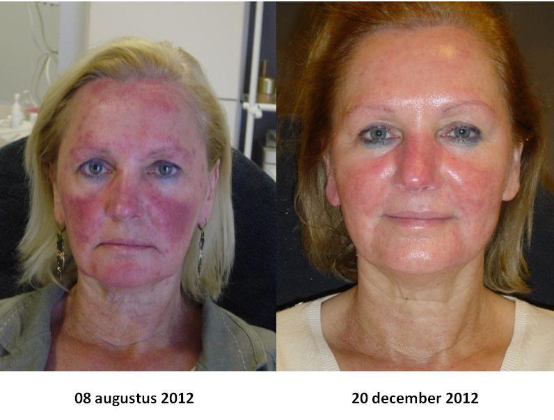 Weg extreem rode huid met QMS Intravital