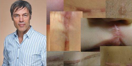 waarom ontwikkelt de huid littekens