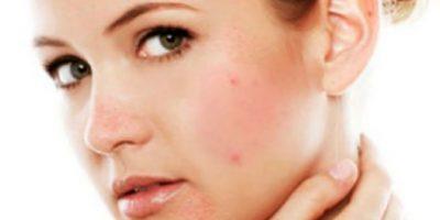 Homepage-Rosacea-en-Suiker-624x312