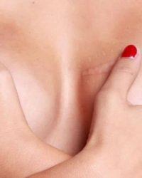 borsten na operatie