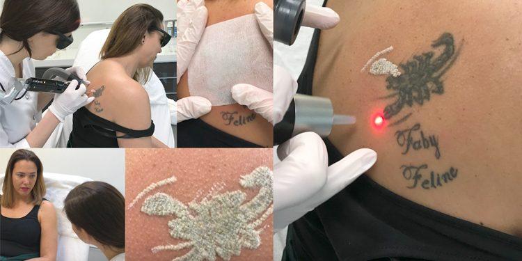 pico laser tatoeage amstelzijde
