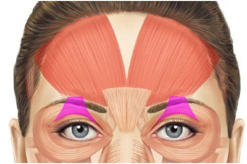 hangende oogleden na botox