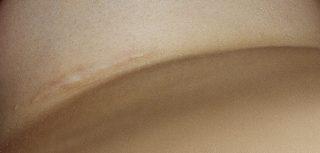 litteken na borstvergroting