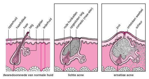 talgklier en acne